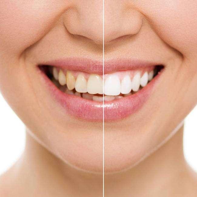 standard-tooth-whitening Acabe com o Mau Halito, Tartaro e as Placas nos dentes com apenas 1 Ingrediente